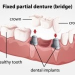 Cosmetic Dentures – New and Better Options