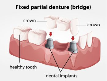 Cosmetic Dentures may be able to give you the smile you have always wanted