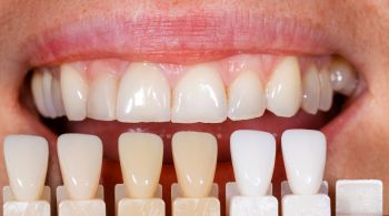 Thinking of getting dental veneers?